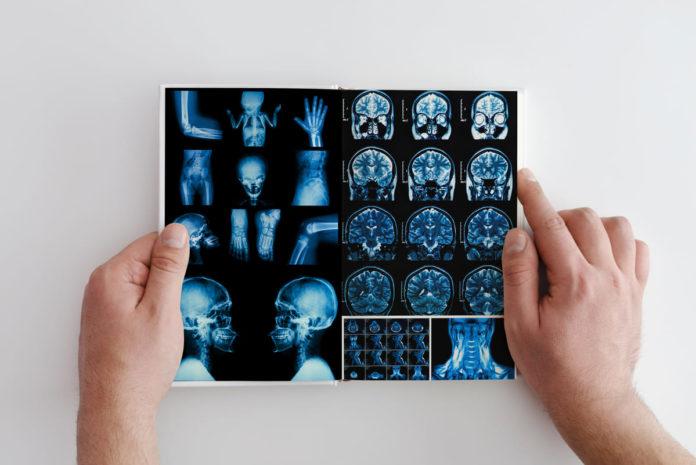 che cos'è la sclerosi multipla