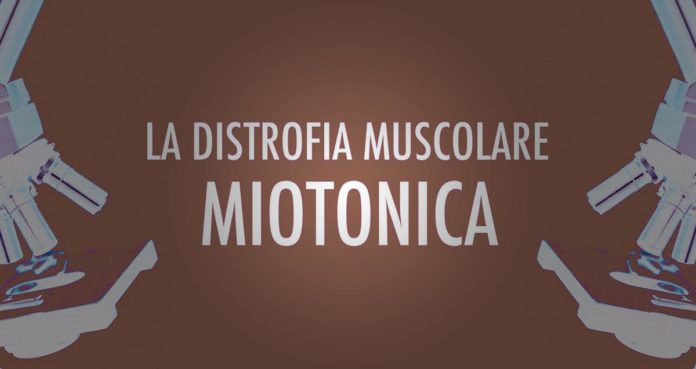 Distrofia muscolare miotonica