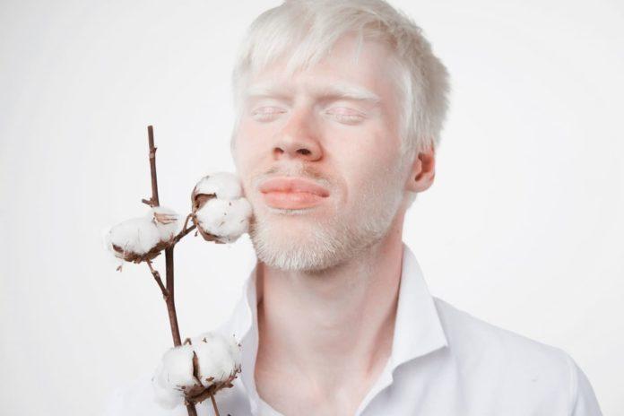 che cos'è albinismo