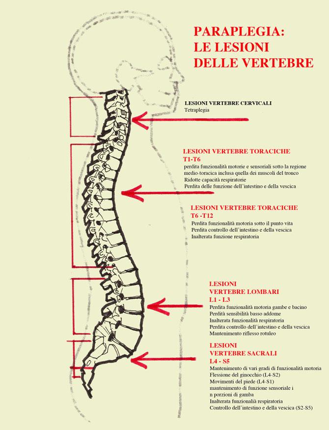 lesioni vertebrali nella paraplegia