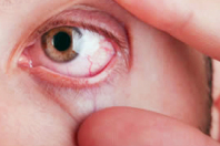 Retinopatia Diabetica: posso diventare cieco?