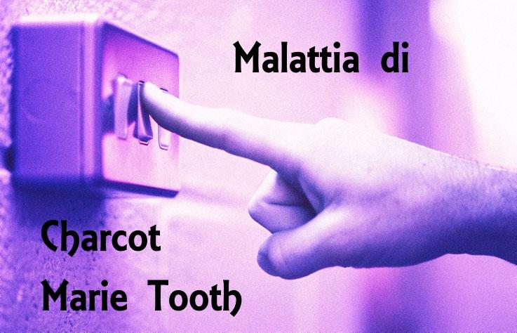 Malattia di Charcot Marie