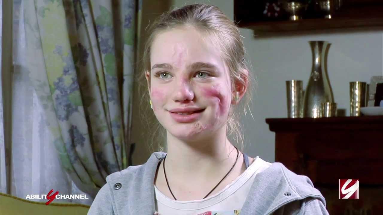 Beatrice Vio Bebe promessa della scherma paralimpica