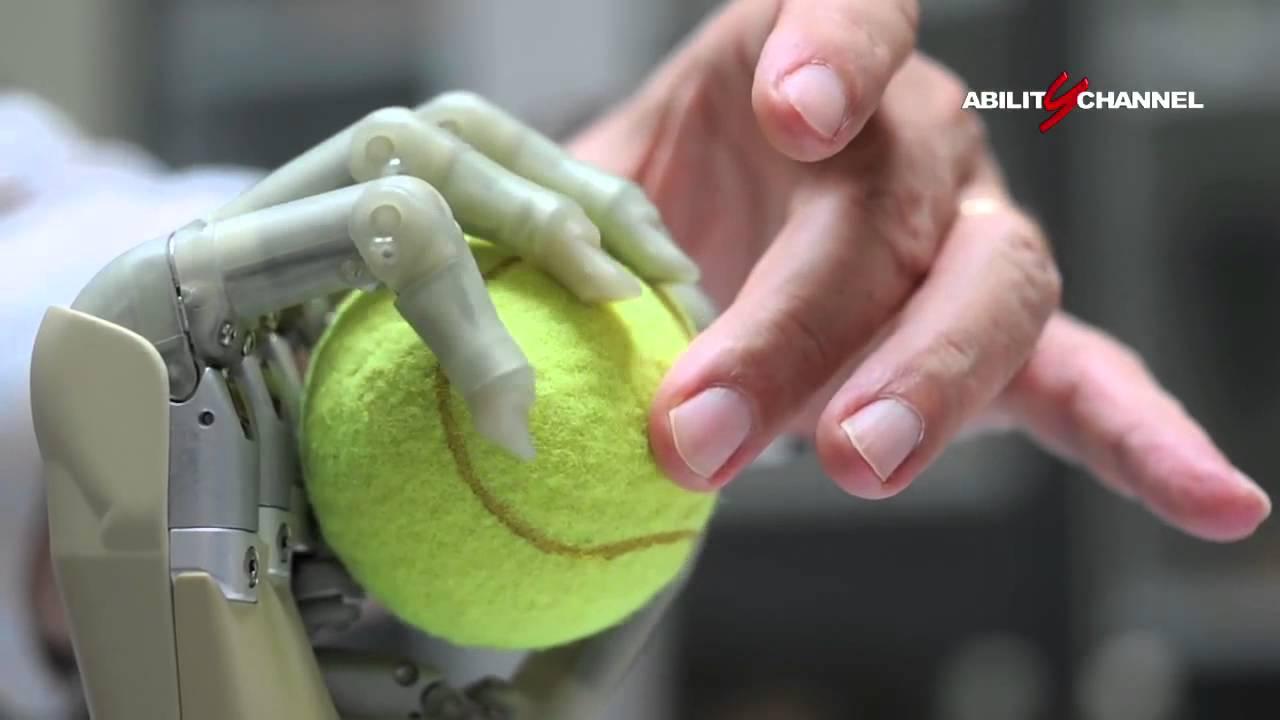 Centro protesi INAIL di Budrio, gli arti superiori mioelettrici
