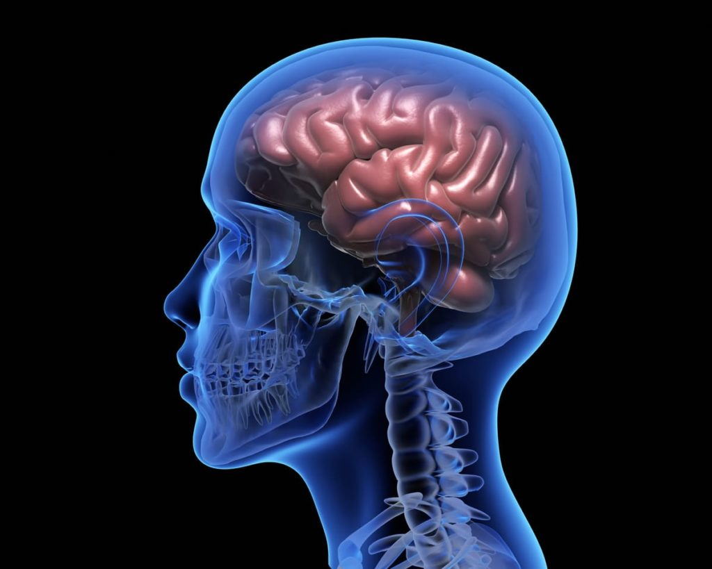 cervello afasia