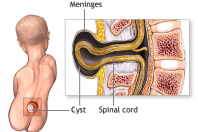 Il meningocele,una forma di spina bifida