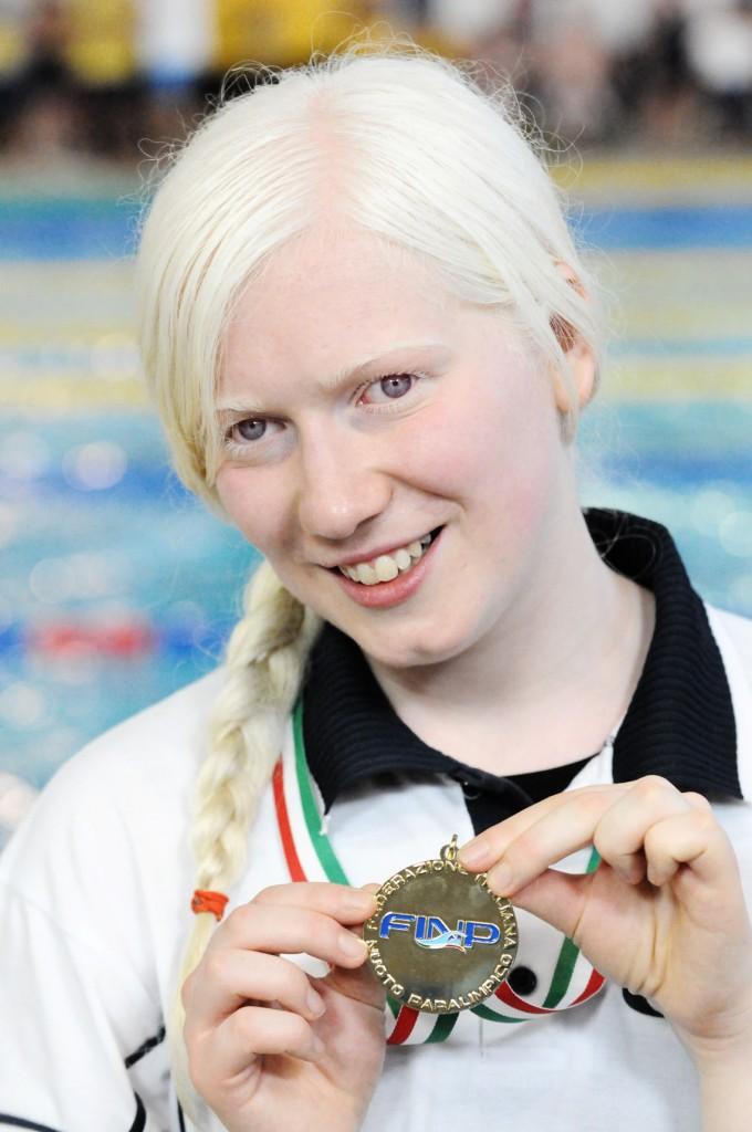 Luigia Vivenzio albinismo
