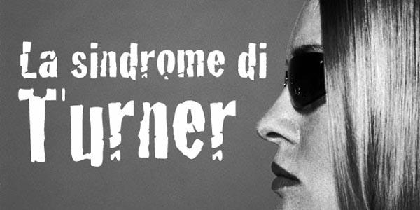 Sindrome di Turner