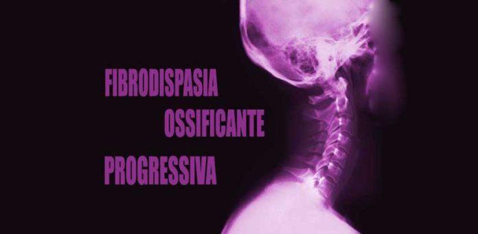 Fibrodisplasia ossificante