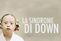 Sindrome di Down, di cosa si tratta