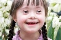 Sindrome di Down, i risultati di uno studio