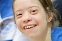 Sindrome di Down, segni e sintomi