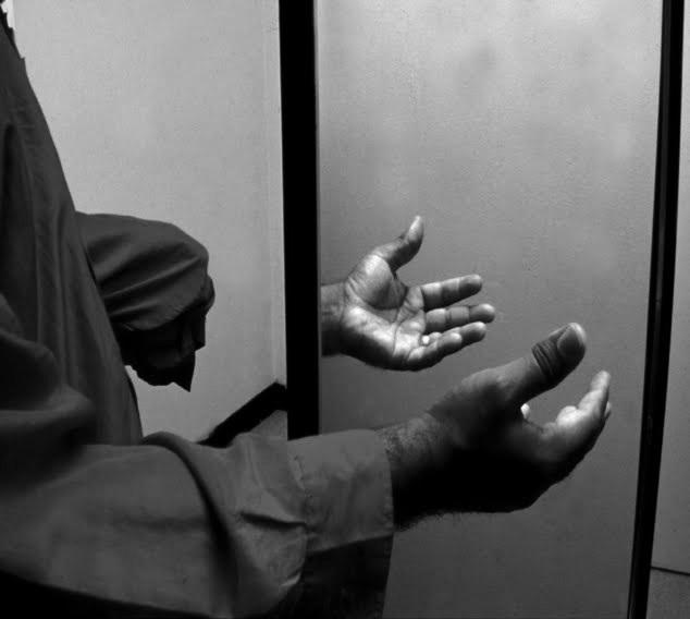 sindrome arto fantasma 06