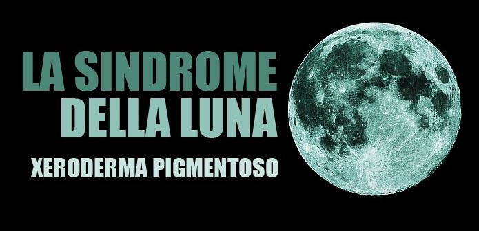 Sindrome della Luna ante