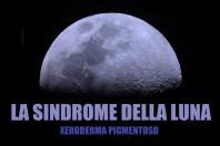 Xeroderma pigmentoso, cos'è la Sindrome della Luna