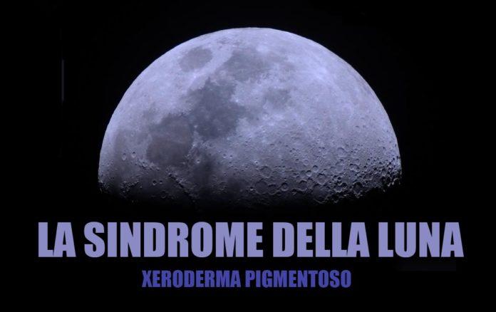 sindrome-della-luna-01