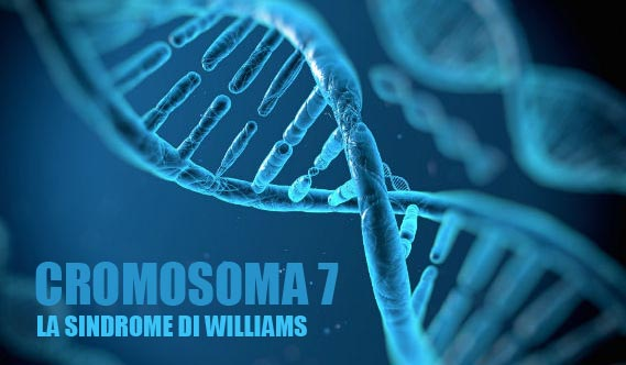 sindrome-di-williams-02