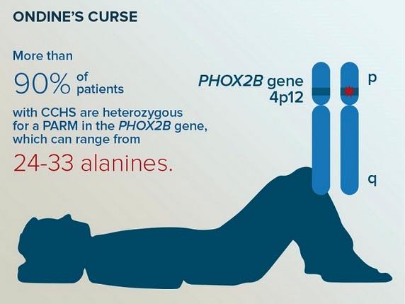 sindrome di ondine3