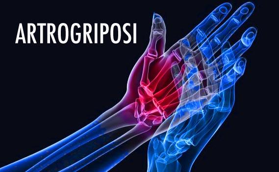 Artrogriposi 02