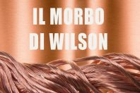Morbo di Wilson cause, analisi e terapia