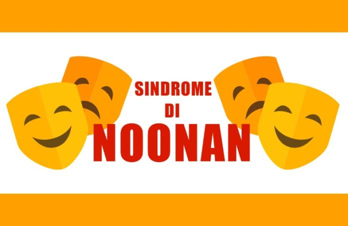 Sindrome di Noonan