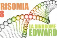 Trisomia 18, cos'è la Sindrome di Edwards