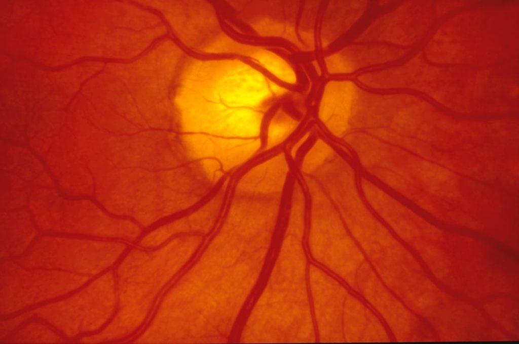 distacco di retina