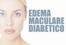 Edema maculare diabetico: sintomi e terapie