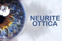 Neurite ottica – Sintomi e cause