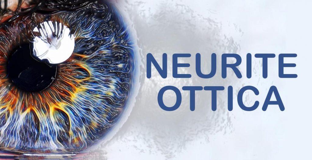 Neurite ottica