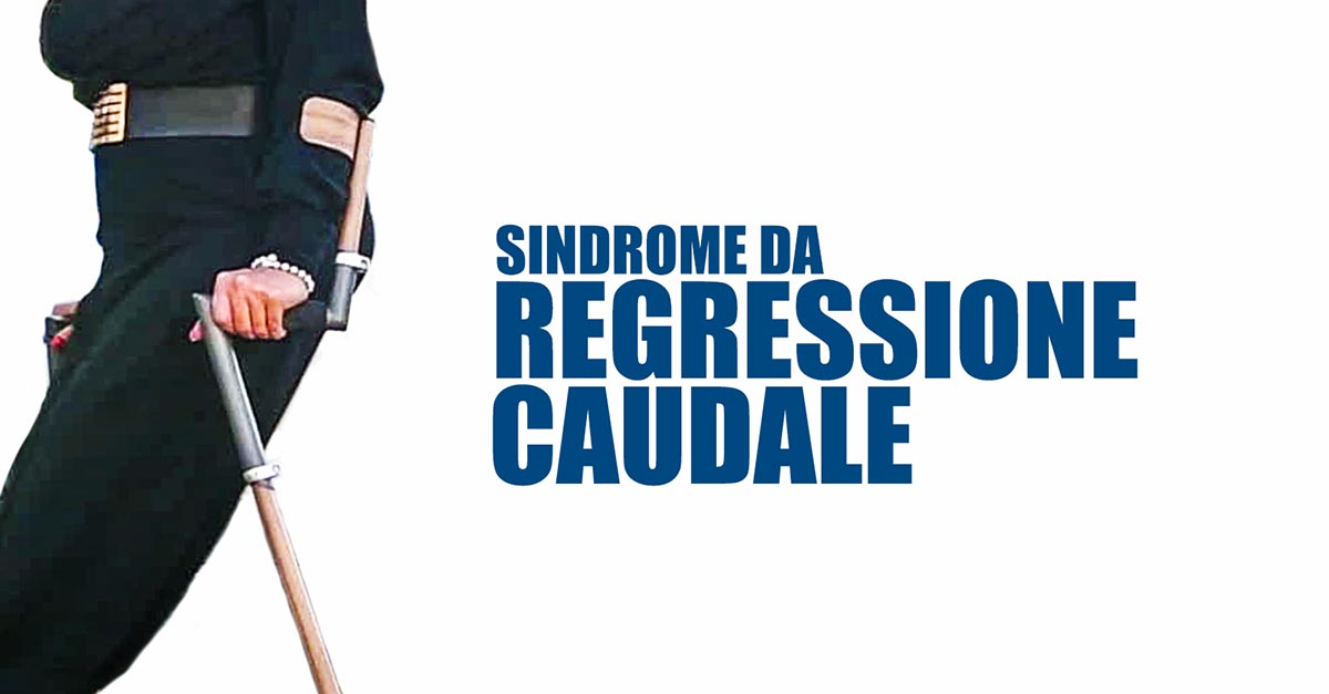 Sindrome regressione caudale