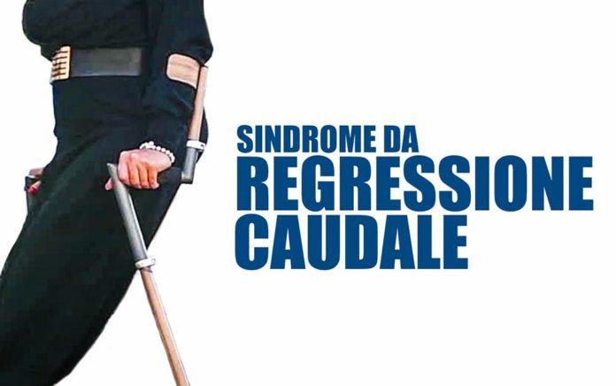 Sindrome regressione caudale2