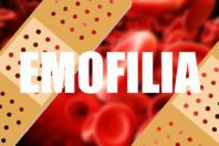 Emofilia – Diagnosi, sintomi e cure