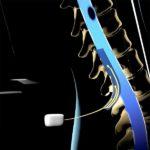 Stimolazione paraplegici