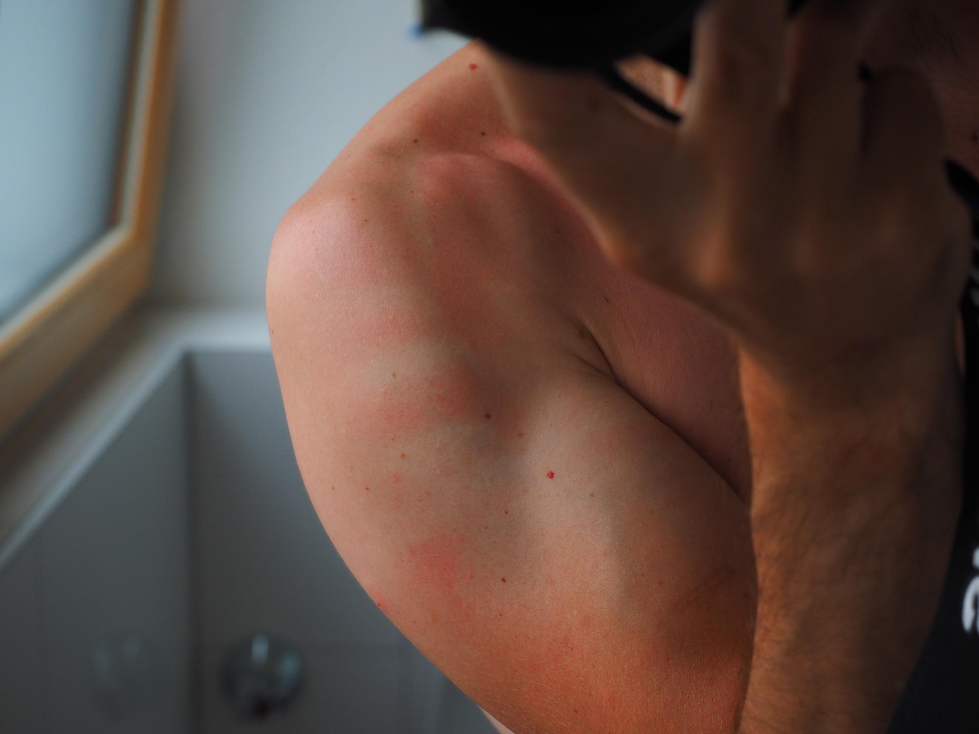 porfiria cutanea malattia foto