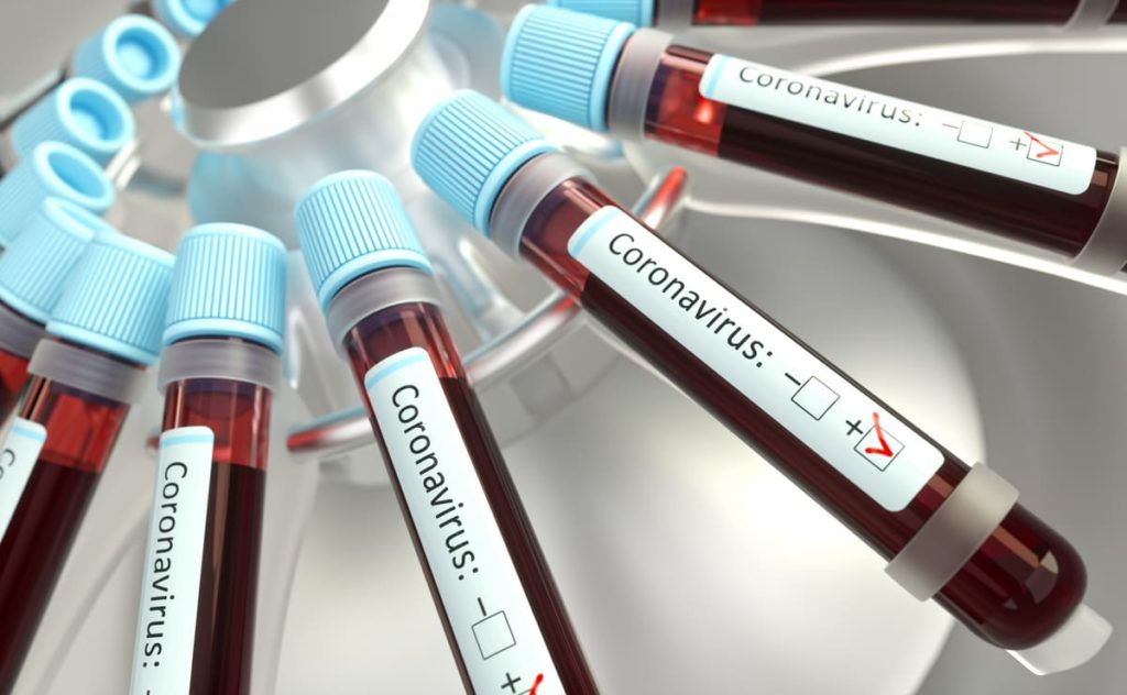 alcuni vaccini per coronavirus