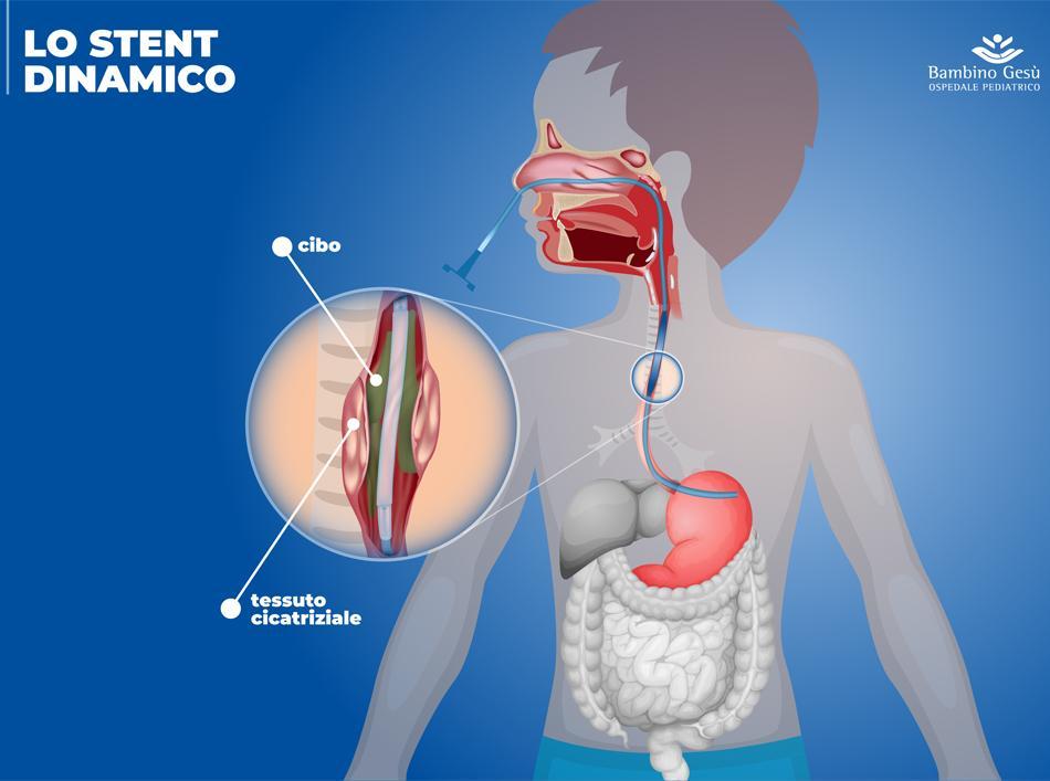 stent esofageo ospedale bambin gesù