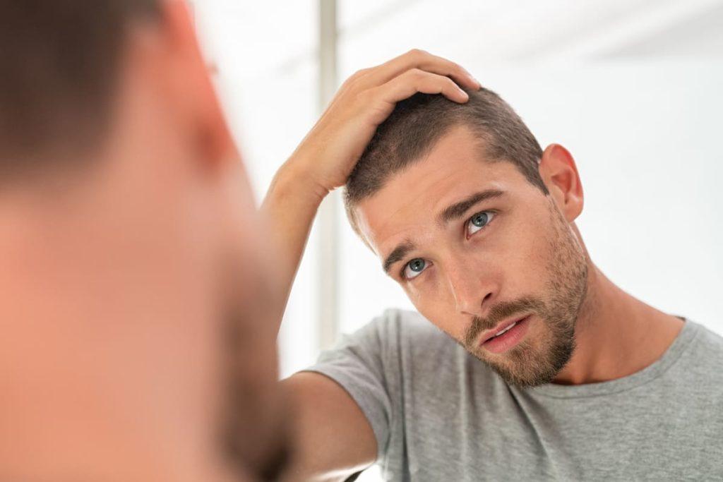 uomo controllo psoriasi in cuoio capelluto