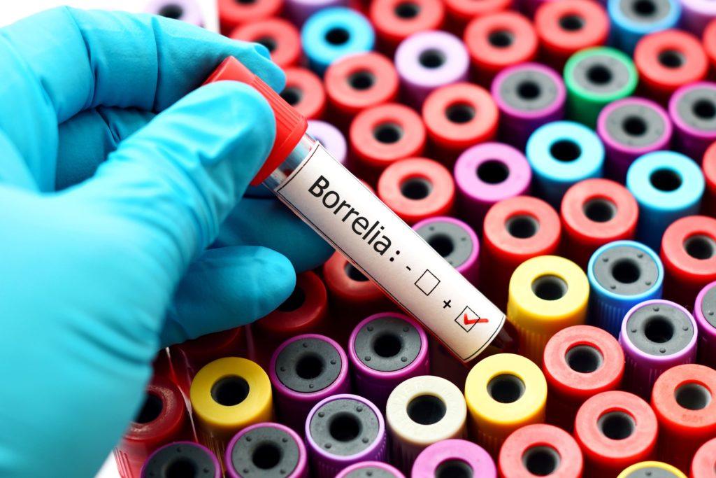 Come si manifesta la malattia di Lyme?test di aboratorio