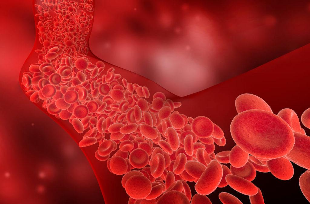 emolisi intravascolare sintomi