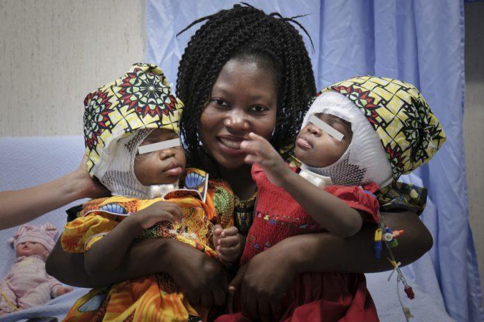 le gemelle siamesi dopo l'intervento