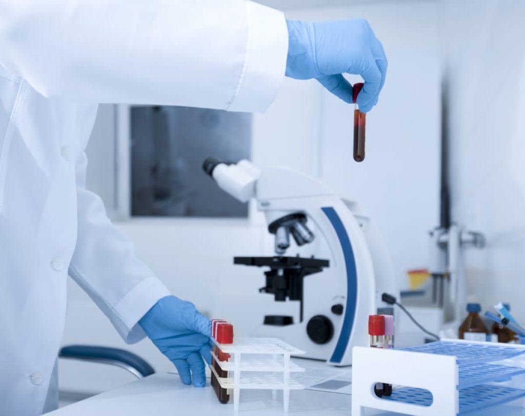 ricerca cause sideremia