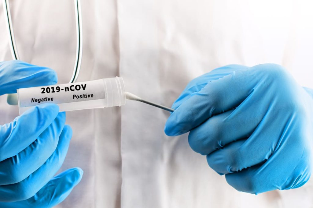 test coronavirus test rapido