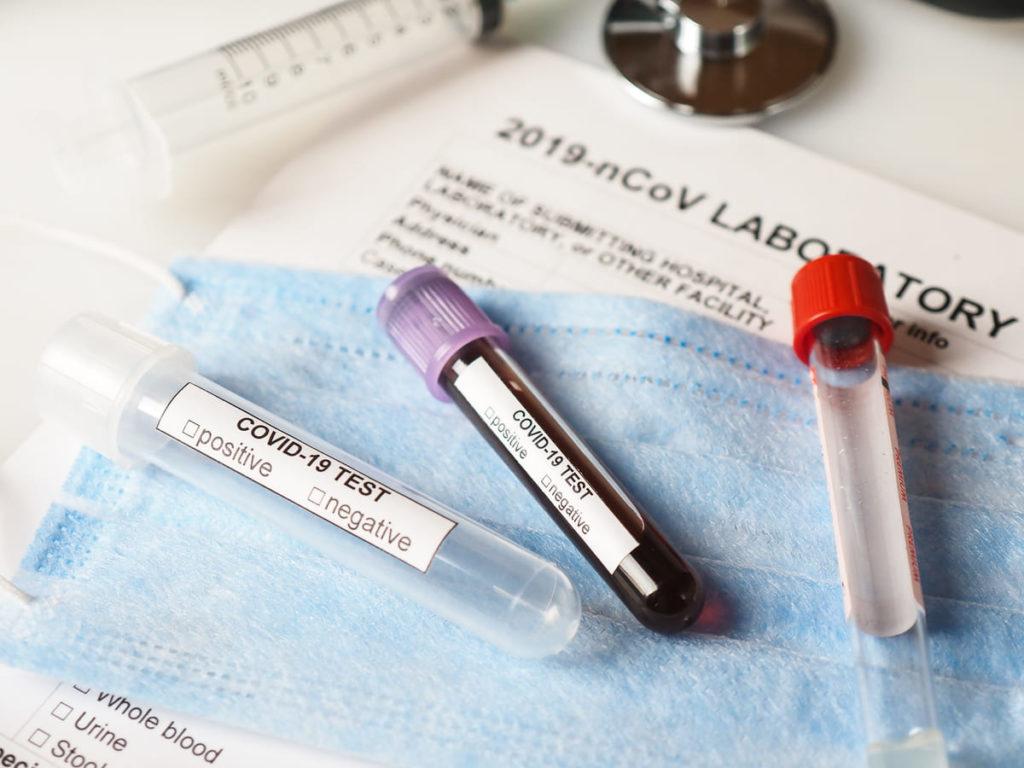test coronavirus test sierologico