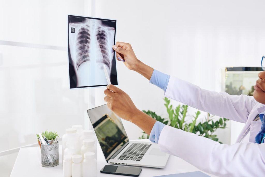la giornata mondiale della tubercolosi
