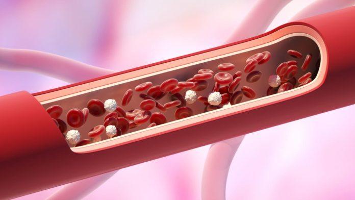 che cos'è l'angiosclerosi