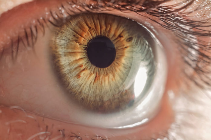 maculopatia senile Degenerazione maculare senile